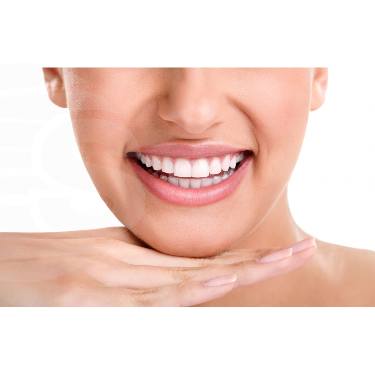NIGHT, Tiras de clareamento dental estético